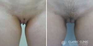 Женская интимная пластика